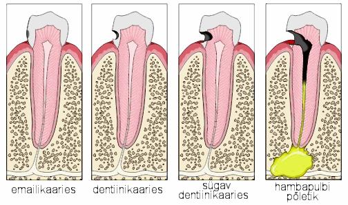Hambakaariese 4 staadiumi