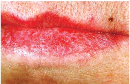 Võrkja struktuuri võib punane lihhen tekitada ka alahuulele.Sarnane võrkjas struktuur võib esine