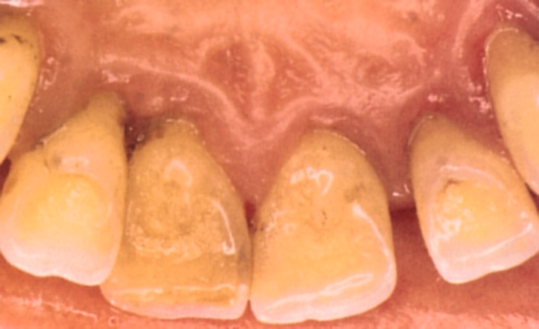 Krooniline parodontiit