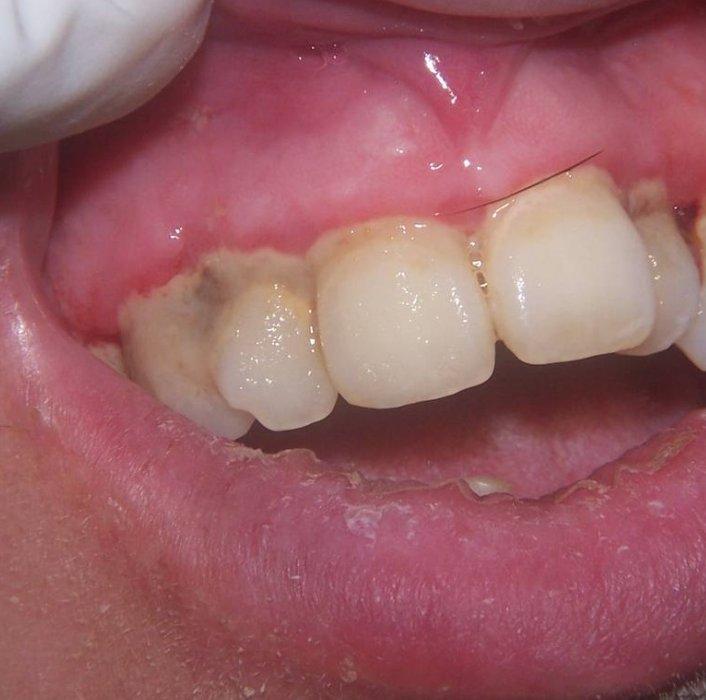 ANUG (äge nekrotiseeruv haavandiline gingiviit/parodontiit)