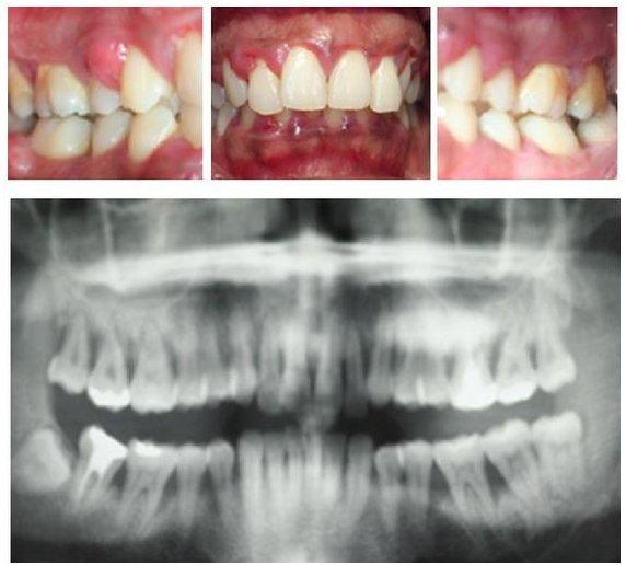 Agressiivse parodontiidi kahjustused rasedal naispatsiendil