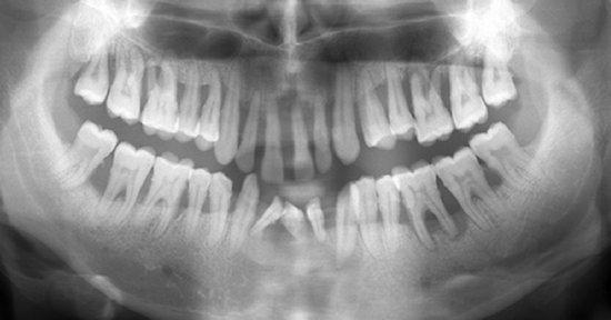 GAgP 25 aastasel suitsetaval puuduliku suuhügieeniga patsiendil
