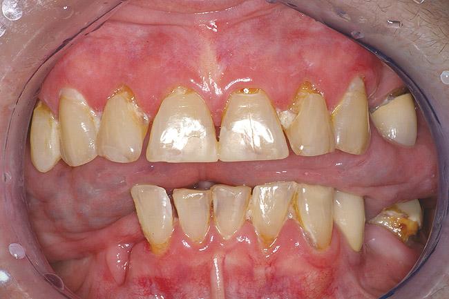 Sjörgeni sündroomist tingitud suukuivus