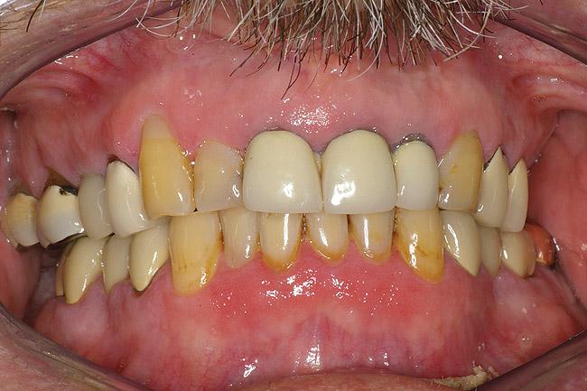 kiiritusravist tingitud suukuivus