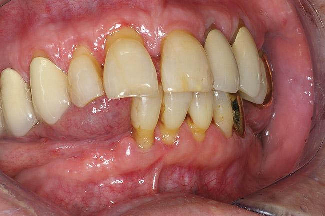 ravimitest tingitud suukuivus