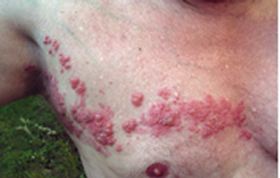 Herpes zoster - vöötohatis