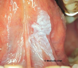 Leukoplaakia