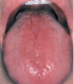Glossitis rhomboidea mediana