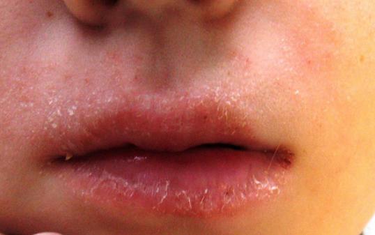Huulepõletik (e. keiliit) toidu allergiast