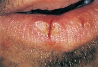 huule lõhe põhjustajaks Candida albicans