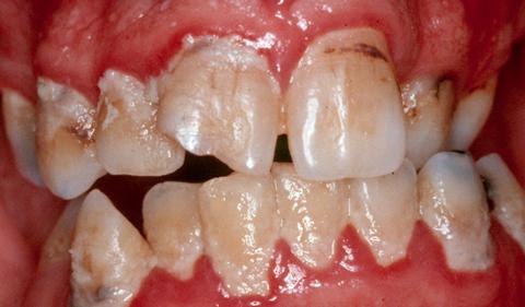 puudlikust suuhügieenist tingitud ladestused