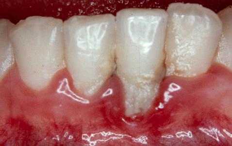 kaugele arenenud gingiviit
