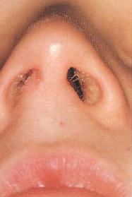 üks läbimatu ninasõõre