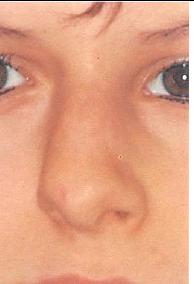 kõverdunud nina