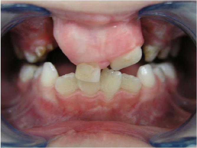 kahepoolse lõhega lapse hambumus