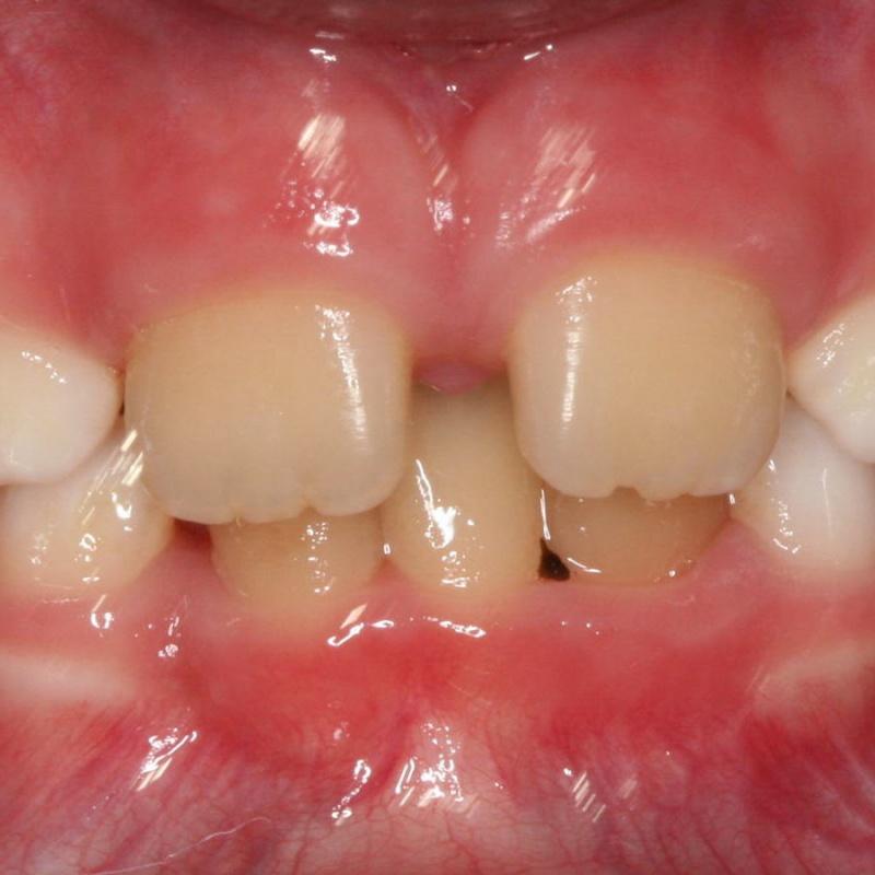 ruumipuudus eesmiste hammaste osas