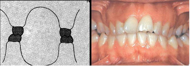 alumine hambakaar on laiem ülemisest