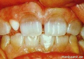 Tetratsükliini liigtarbimise mõju hammastele
