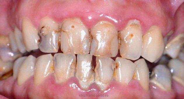 Kaariesekahjustusega hambad