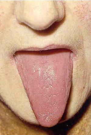 Pernitsioosne aneemia