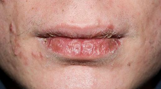 Ravimiallergia huultel