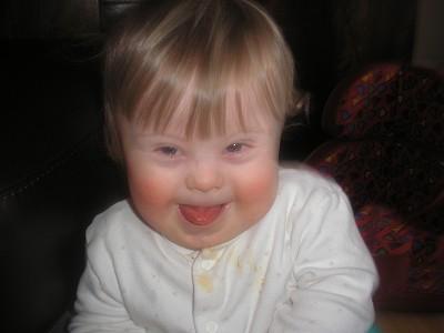 Downi sündroom